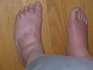 Gout_Advanced