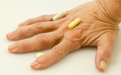 home remedies for finger gout ginger treatment for gout uric acid in blood in pregnancy