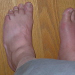 Gout Pictures and Diagnosis