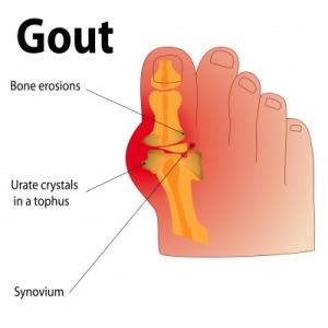 gout damages the bone